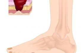 pielęgnacja stopy cukrzycowej w physiomedica